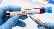 Ilustrasi sampel darah Covid-19. Foto: Freepic.